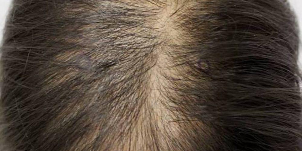 Vypadávanie vlasov a ochorenie vlasovej pokožky II. – Alopecia diffusa